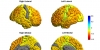 Global bipolar disorder study reveals thinning of gray matter in brain regions responsible for inhibition and emotion